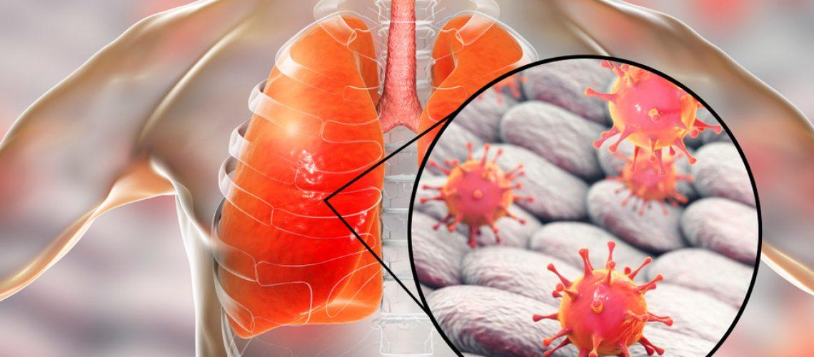 Coronavirus,In,Human,Lungs,,3d,Illustration.,Mers,,Sars,,Novel,Chinese